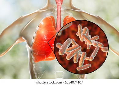 Bacteria pneumonia, medical concept, 3D illustration showing human lungs and close-up view of rod-shaped bacteria in lungs