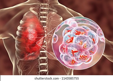 Bacterial pneumonia, medical concept. 3D illustration showing rod-shaped bacteria inside alveoli of the lung