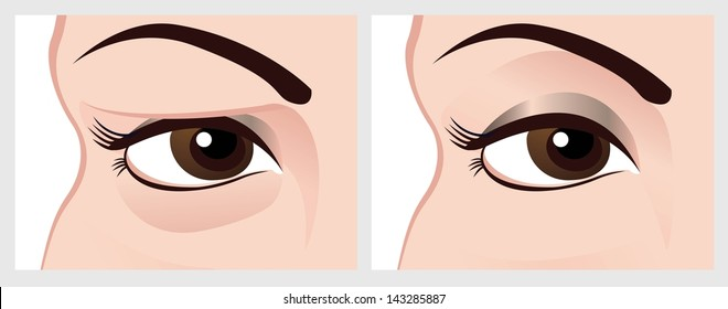 Baggy eyes before and after treatment. Illustration on the white background