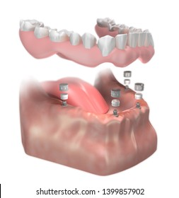 Ball Abutment installation. Lower Implant supported Complete Removable Denture. 3D illustration.