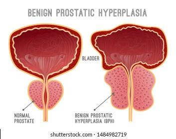 bajeza de adenoma de próstata