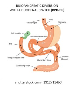 Biliopancreatic Diversion With a Duodenal Siwtch (BPD-DS)