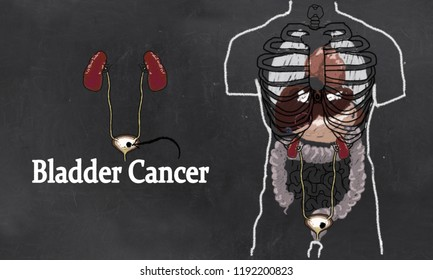 Bladder Cancer Anatomy Illustration with Urinary Tract System. Simple Drawing in Classic Style on Blackboard