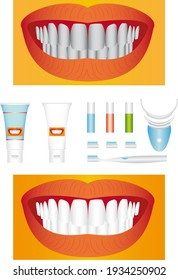 Bleaching of teeth. Beautiful young teeth before and after whitening.