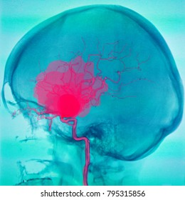 bleeding cerebral aneurysm, angiography, illustration