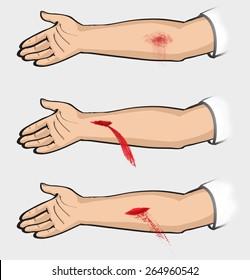 Bleeding. Types of bleeding. Classification. classification of bleeding: capillary, venous, arterial
