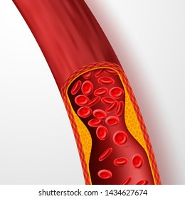 Blocked blood vessel, artery with cholesterol thrombus. 3d vein with clot illustration. Medical artery blood, cholesterol disease, blocked flow circulation