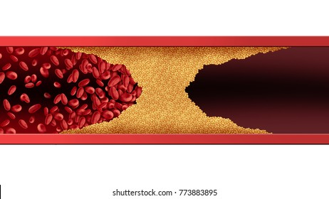 Blocked blood vessel human artery disease with cholesterol buildup clogging or blocking circulation flow with 3D illustration elements.