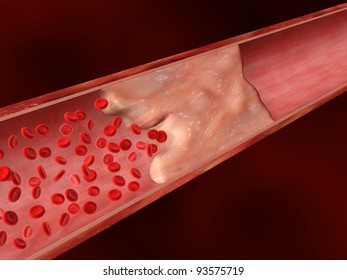 Blood Clot, Calcified Lesion, Plaque Obstructing Blood Flow