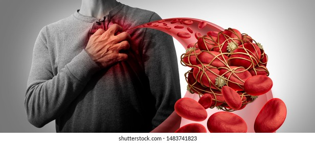 Blood clot health risk or thrombosis medical illustration symbol as a group of human blood cells clumped together as a blockage in an artery leading to the heart with 3D illustration elements.
