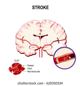 blood clot in the human brain. Ischemic stroke in the cerebral artery and thrombus.