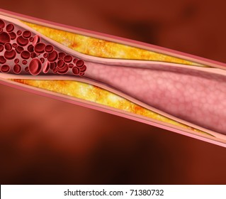 Blood Clot, Plaque in Artery Restricting Blood Flow