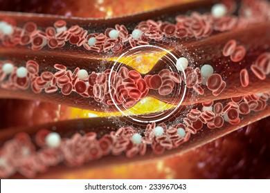 Blood Clot, Vein, Artery, Tunnel, Red Blood Cells, Internal Body, Blood Cell, Heart
