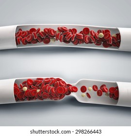 blood flowing and blood clot