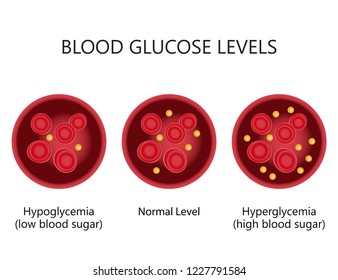 Blood Glucose (Sugar) Levels. High level is referred to as hyperglycemia. Low levels are referred to as hypoglycemia.
