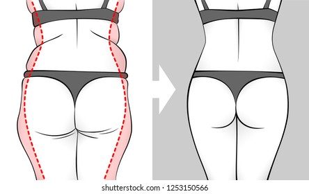 The body of a woman before and after losing weight. Back, butt and hips. Red outline showing overweight.