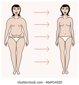Body woman correction, cellulite fat, plastic surgery infographics for posters, brochures. Breast lift and implants, thighs lift, liposuction, tummy tuck, arm lift, diastasis surgery, labia reduction