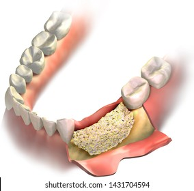 Bone graft on Loss bone in lower jaw before close it with gums. Bone regeneration. 3D illustration.