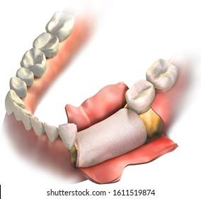 Bone graft placement on missing teeth 21, 20, 19 and bone lossed, closing by dental membrane. 3D illustration. Regenerative collagen dental membrane closed on bone graft before gum closing.