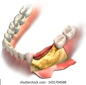 Bone regeneration using bone graft. Transparent graft on his place of missing teeth on lower jaw. 3D illustration.