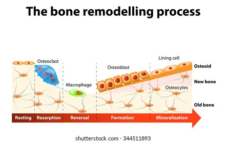 The bone remodeling process involves the following steps. In a healthy body, osteoclasts and osteoblasts work together to maintain the balance between bone loss and bone formation.