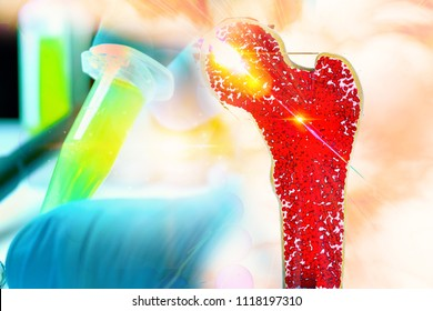 Bone research concept bone cancer and stem cells treatment Osteoporosis Bone marrow bone problems diseases 3D rendering