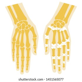 Bones of the hand and articular surfaces. Palm and fingers.