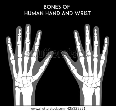 Bones Human Hands Wrists Medically Accurate Stock Illustration ...