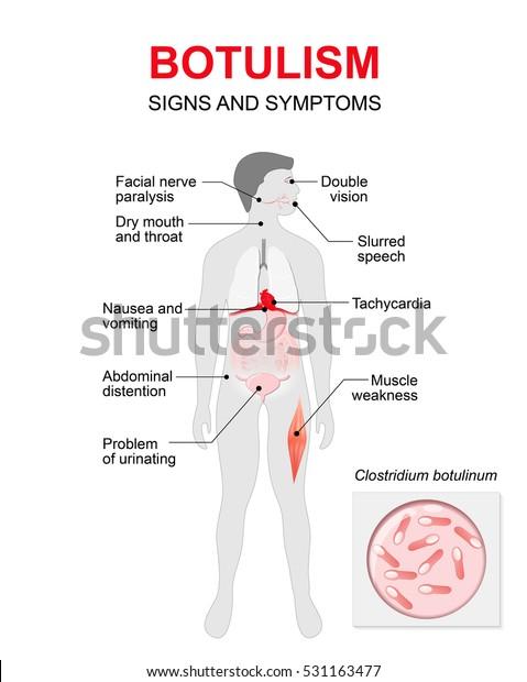 botulism is caused by condiloame în limbă la femei