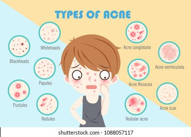 boy with types of acne on the blue background