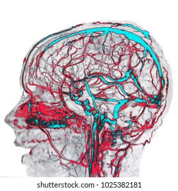 Brain arteries and veins, MR angiography image, in blue and red