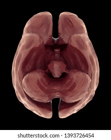 Brain Atrophy Or Severe Shrinkage Of The Brain Caused By Dementia And Alzheimer, 3d rendering