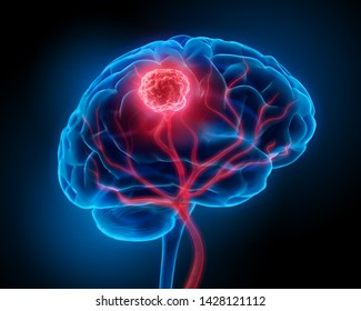 Brain with blood vessels and tumor- 3d Illustration