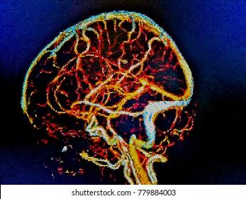 Brain MRI, cerebral vessels