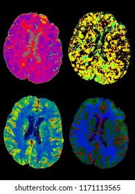 Brain perfusion, CT image