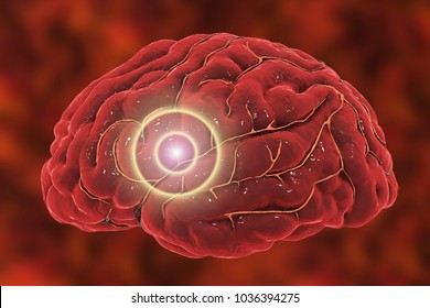 Brain stroke concept. Migraine and headache conceptual image, 3D illustration