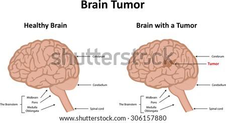 brain tumor stock illustration 306157880 shutterstock Brain Herniation Diagram brain tumor view preview