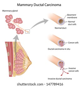 Breast cancer ductal carcinoma