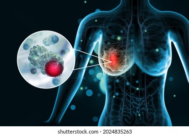 Breast cancer. Female breast anatomy. 3d illustration