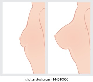 Breast enlargement before and after cosmetic surgery.