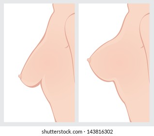 Breast Uplift before and after treatment.
