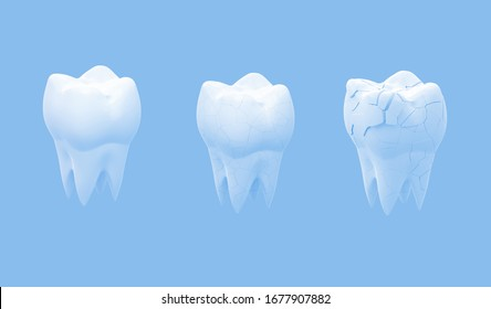 Broken molars tooth and whole tooth isolated on blue background. 3d illustration