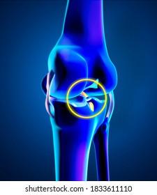Broken posterior cruciate ligament. Injury and rupture. Enlargement of the bones of the knee, femur and tibia. Anatomy. 3d render