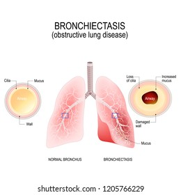 Bronchiectasis. Normal bronchus and bronchiectasis. enlarged small airways that collect mucus and cause recurrent lung infections. obstructive lung disease