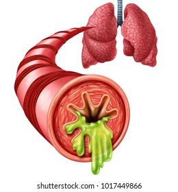 Bronchitis anatomy concept as an inflammation of bronchial tube lining with thick mucus secreted as a chest cold as a 3D illustration elements.