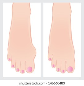 Bunion before and after operation.