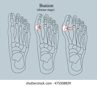 bunion (disease stage), black and white illustration of a bright accent   diseases