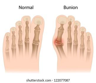 Bunion in foot