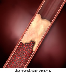 Calcified Lesion in Artery, Blood Clot, Restricting Blood Flow