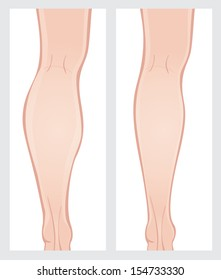 Calf reduction surgery. Leg before and after operation.